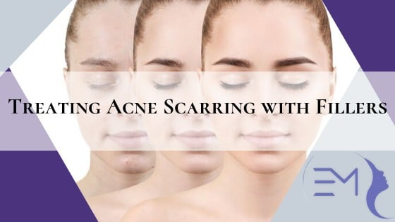Treating Acne Scarring with Fillers