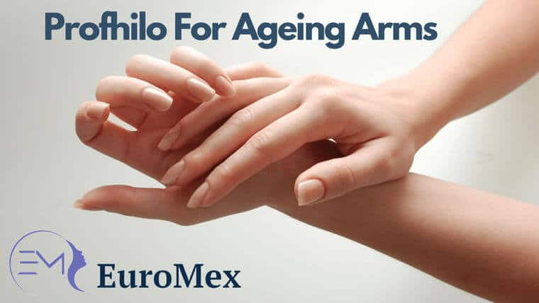 Profhilo Treatment For Ageing Arms