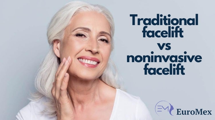 dermal filler facelift