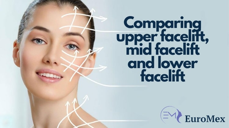Comparing upper facelift, mid facelift and lower facelift