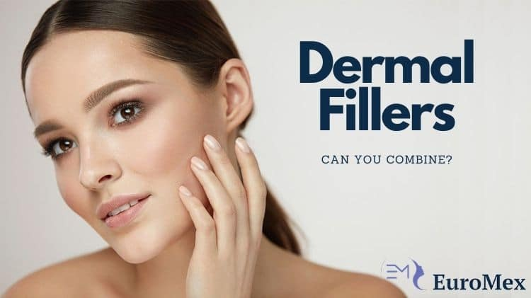 Can you combine different Dermal Fillers?